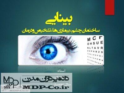 پاورپوینت بینایی – ساختمان چشم ، بیماری ها ، تشخیص و درمان