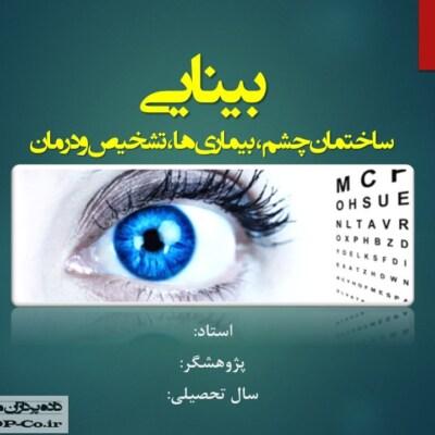 پاورپوینت بینایی - ساختمان چشم ، بیماری ها ، تشخیص و درمان